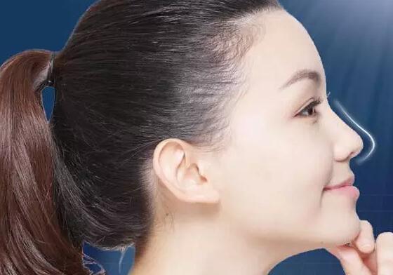 怎么让鼻子变挺?挺鼻子的好方法