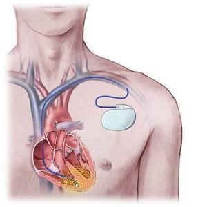 心电图报告上的窦性心律不齐是什么意思?有两类人需要注意