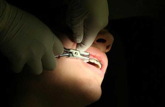 拔牙价格多少钱一颗 哪些情况要拔牙