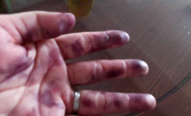 6个技巧告诉你桑葚要怎么洗才能洗干净!