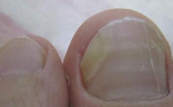 脚趾甲长到肉里面真疼,4种方法教你如何处理嵌甲