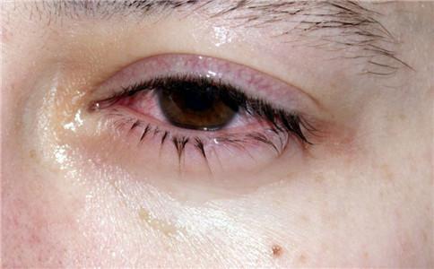 角膜炎和结膜炎的区别 以及用什么眼药水合适