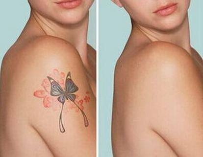 做一次皮秒洗纹身多少钱?洗纹身什么方法最有效